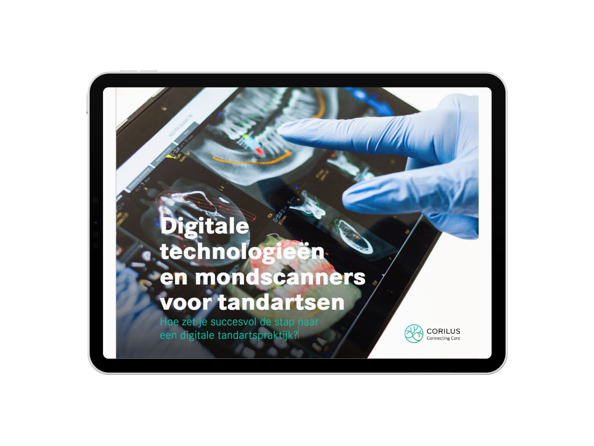 digitale_technologieën_mondscanners_tandartsen-3